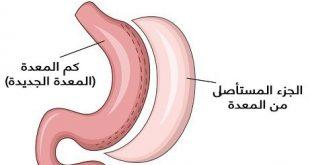 عملية تكميم المعدة في مصر , شفط المعدة وتصغيرها