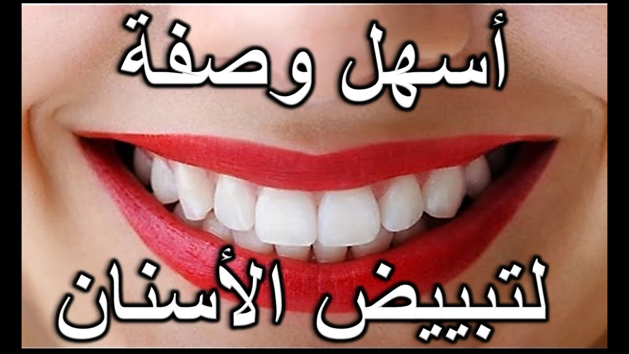 صورة طريقة سريعة لتبيض الاسنان , بسهولة احصلي على اسنان لامعة