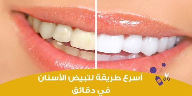 صور طريقة سريعة لتبيض الاسنان , بسهولة احصلي على اسنان لامعة