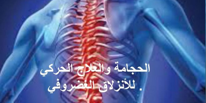 صور علاج الانزلاق الغضروفي بالحجامة , اسباب وعلاج انزلاق غضروف الظهر