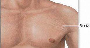 صور علاج تشققات الجسم البيضاء , ازاى اتخلص من التشققات البيضاء