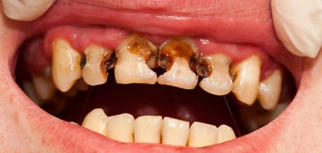 صور اسباب تفتت الاسنان , علاج تاكل الاسنان عند الشباب