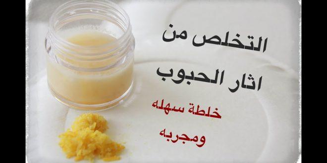 صورة التخلص من اثار الحبوب , وصفات رائعة لجعل بشرتك اكثر نقاء