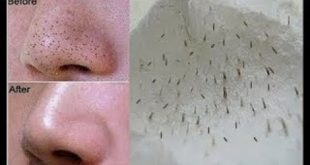 علاج الرؤوس السوداء في الوجه , كيف تتخلصي وبكل سهولة من الرؤؤس السوداء