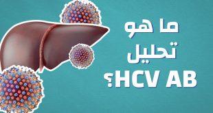 ما هو تحليل hcv ab , معلومات عن تحليل التهاب الكبد الفيروسي