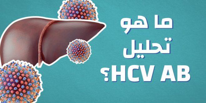 صورة ما هو تحليل hcv ab , معلومات عن تحليل التهاب الكبد الفيروسي