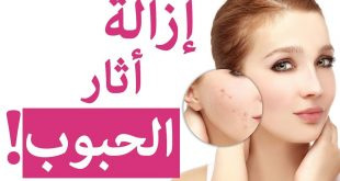 صورة ازالة اثار الحبوب من الوجه نهائيا , افضل الطرق لازالة ندوبات الوجه