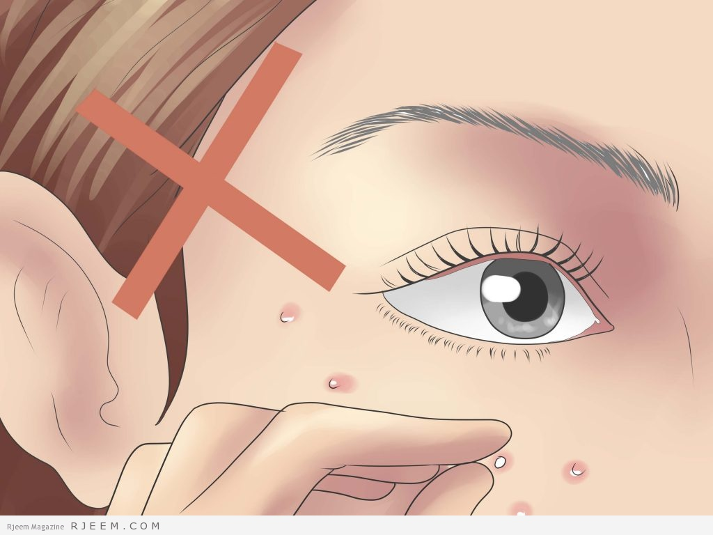 صورة خلطات لصفاء الوجه من الحبوب والبقع , لوجه اجمل خالى من العيوب 2117 4