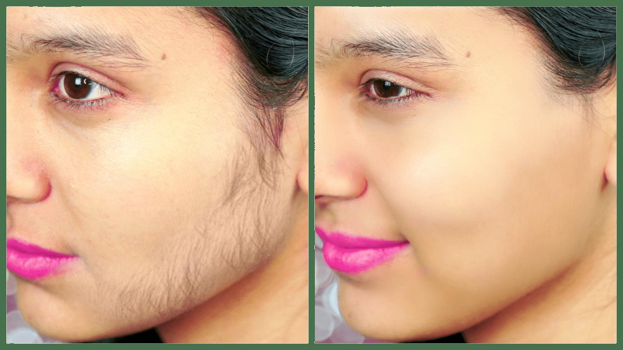 صورة ازالة الشعر الزائد من الوجه , طريقة سحرية لازالة شعر الوجه نهائيا