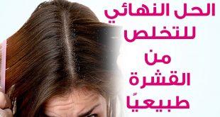 علاج القشرة والحكة نهائيا , معايا هنتخلص نهائيا من قشرة الشعر
