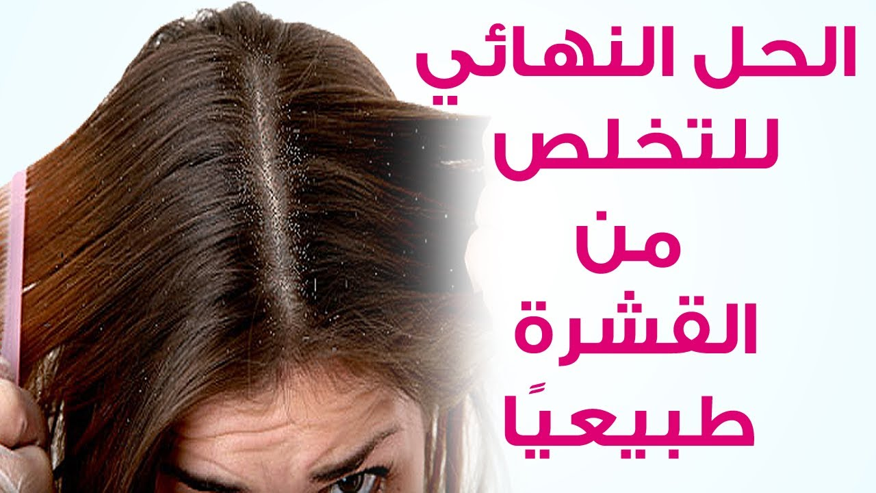 صورة علاج القشرة والحكة نهائيا , معايا هنتخلص نهائيا من قشرة الشعر