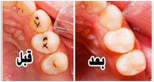 صورة تخلص من تسوس الاسنان , احصلي علي اسنان هوليود