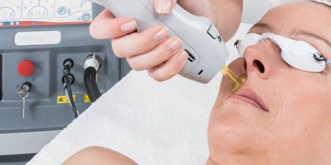 صورة ازالة الشعر الابيض بالليزر , طريقة التخلص من الشعر الابيض بسهولة