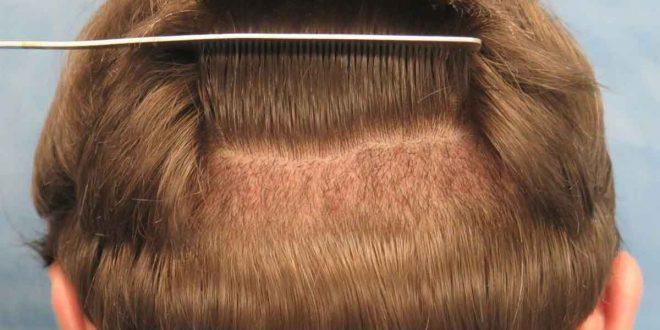 صورة اضرار زراعة الشعر الطبيعي , زراعه الشعر لها اضرار وفوائد