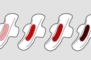 صورة اسباب الدم الاسود اثناء الدورة , عادة ما يكون هناك دم لونه اغمق من المعتاد ما السبب