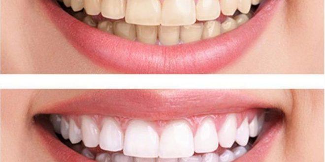 صورة افضل طرق تبييض الاسنان , احصلي على ضحكة جميلة ولا تخافي
