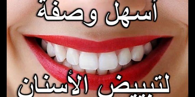صورة طرق منزلية لتبييض الاسنان , اسهل الطرق والحلول لعلاج اسنانك من الاصفرار