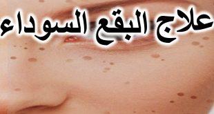 صورة اسباب ظهور بقع سوداء في الوجه , اعراض وعلامات البقع السوداء في الوجه