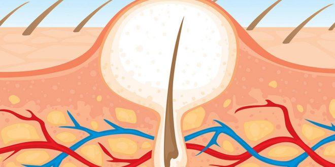صورة طريقة عمل الحلاوة لازالة الشعر من المناطق الحساسة , طريقة لعمل السويت بكل سهولة