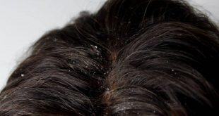 صورة علاج قشرة الشعر الدهني , حلول بسيطه للقشره