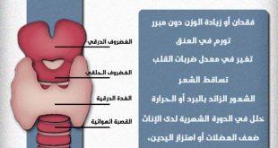 صورة اعراض الغدة الدرقية وعلاجها , الخلل او كسل الغدة ما هي اعراضه