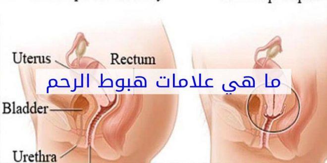 صورة اعراض هبوط الرحم , مشاكل كثيرة تتعرض لها المراة يجب الحذر منها