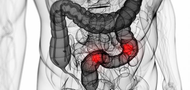 صورة هل القولون العصبي يسبب خفقان في القلب , اعراض القولون منها تتعلق بالقلب