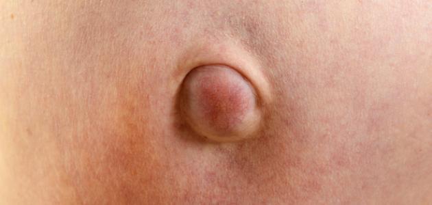 صورة اعراض مرض الفتاق , ما هو سبب الاصابة بالفتاق ؟