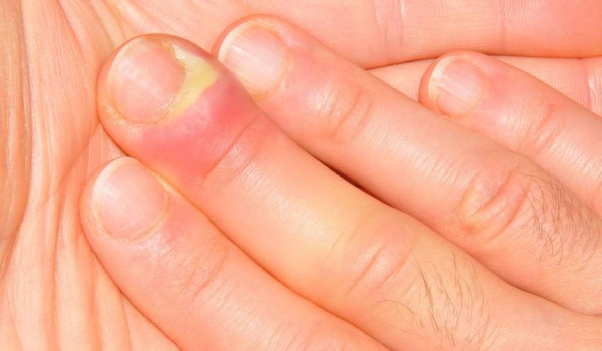 صورة علاج رضة الاصبع , بطريقة بسيطة وسهلة تقدر تعالج رضة صباعك