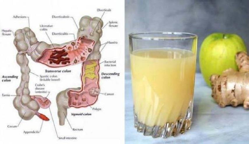 صورة خلطة لتنظيف القولون , وصفة لصحة القولون