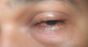صورة عيني تورمت فجاة بدون سابق انذار , علاج تورم العين المفاجئ
