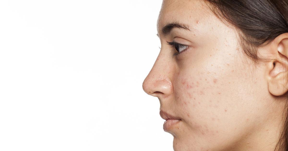 صورة احذر هذه العادات سوف تسبب لك الحبوب , ماهو سبب ظهور الحبوب في الوجه